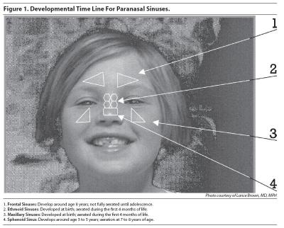 Developmental Time Line For Paranasal Sinuses Pediatric Emergency Medicine Practice_0_0.jpg